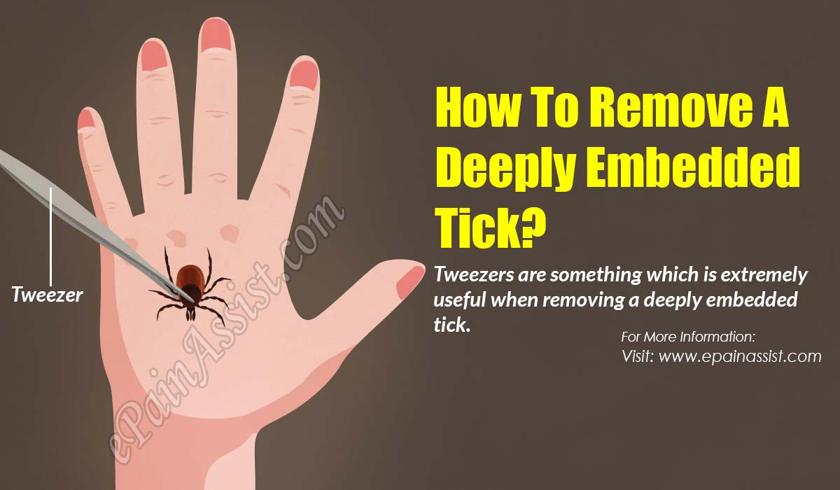 How To Remove A Deeply Embedded Tick