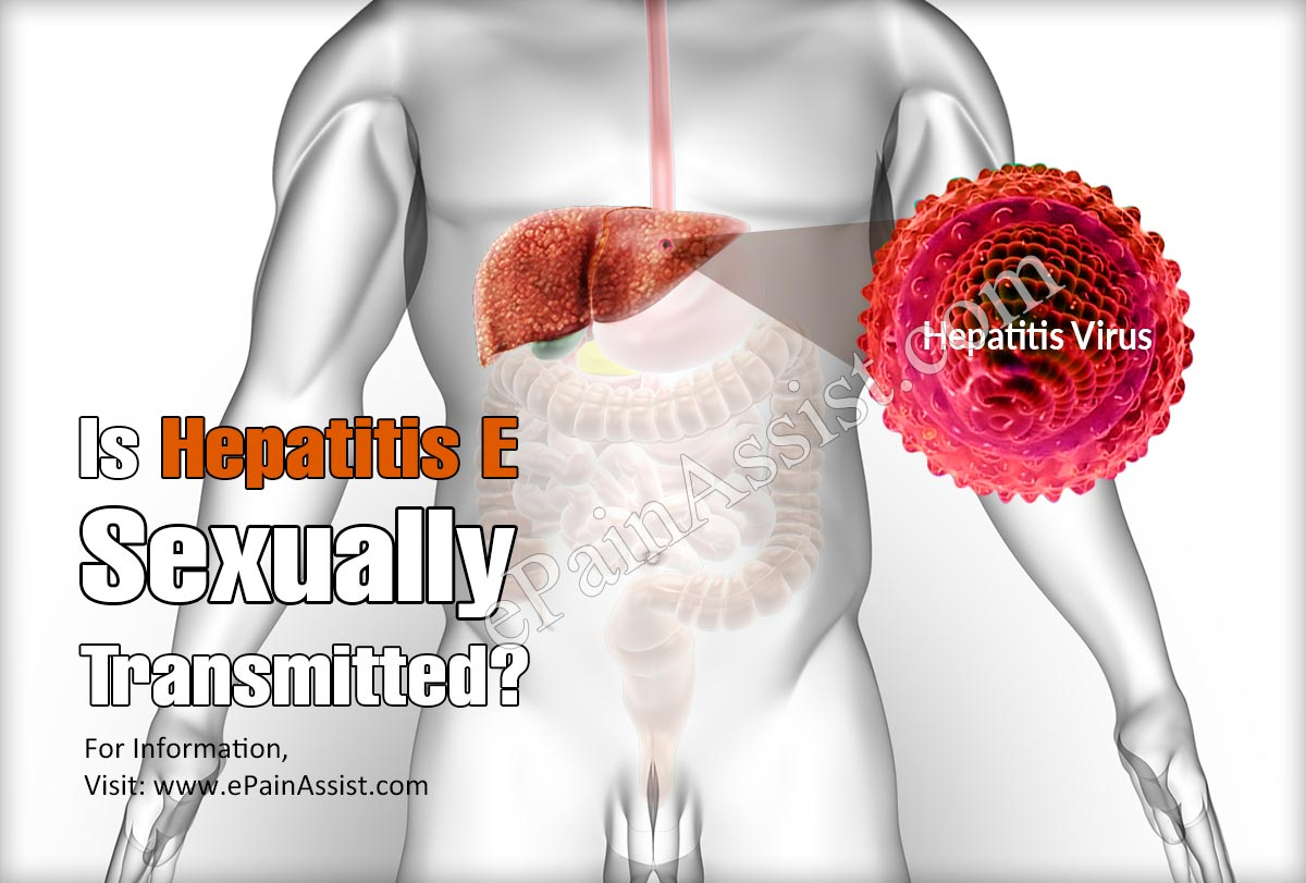 Is Hepatitis E Sexually Transmitted?