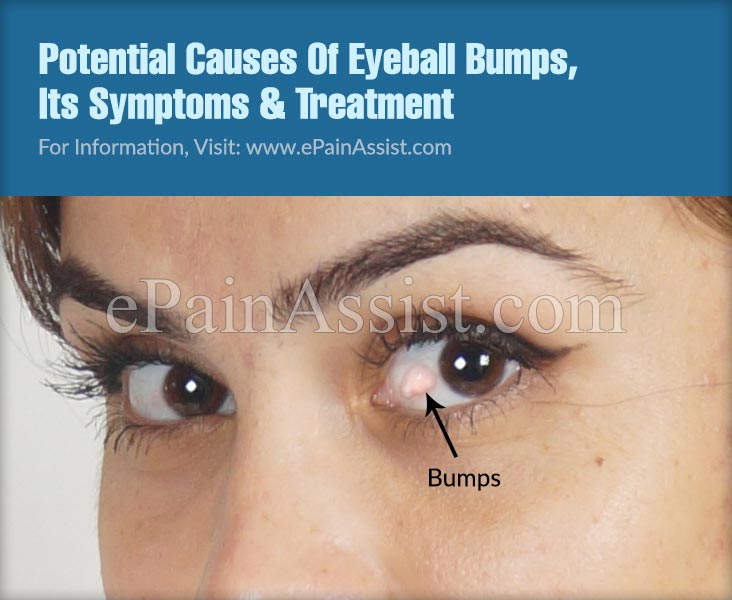 Potential Causes Of Eyeball Bumps, Its Symptoms & Treatment