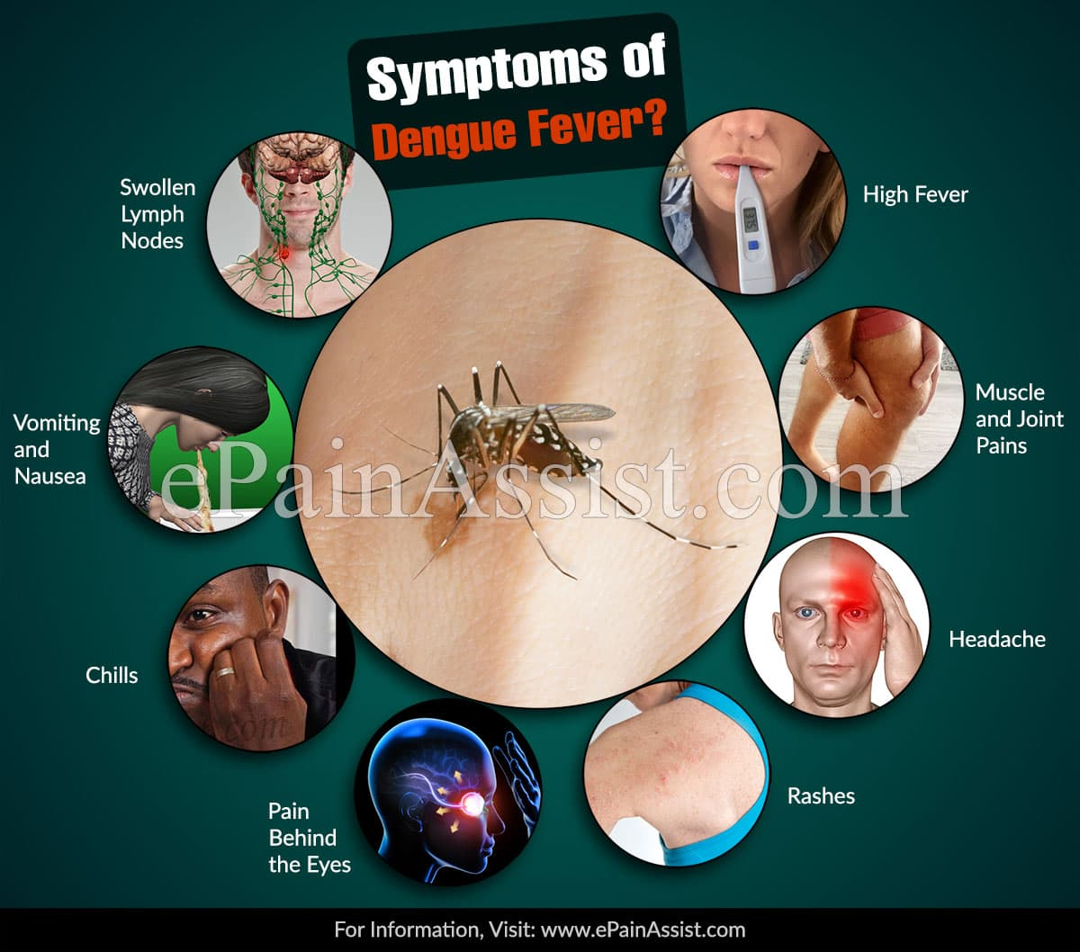 What are the Signs & Symptoms of Dengue Fever?