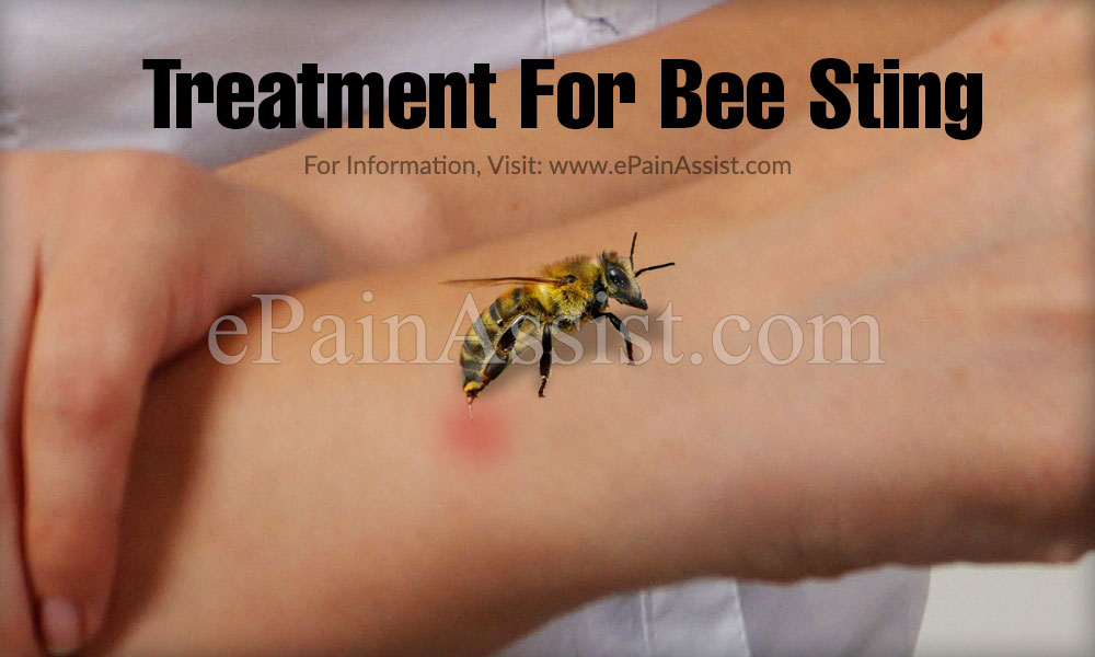 Treatment For Bee Sting