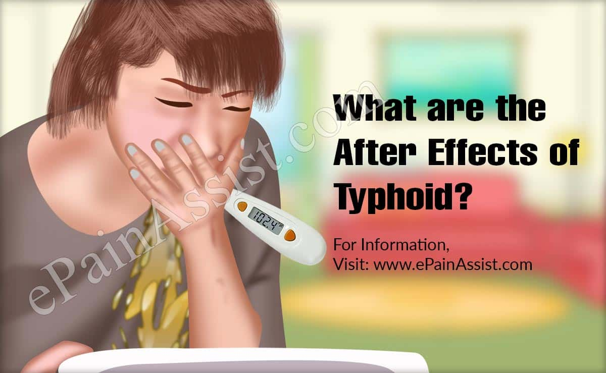 What are the After Effects of Typhoid?