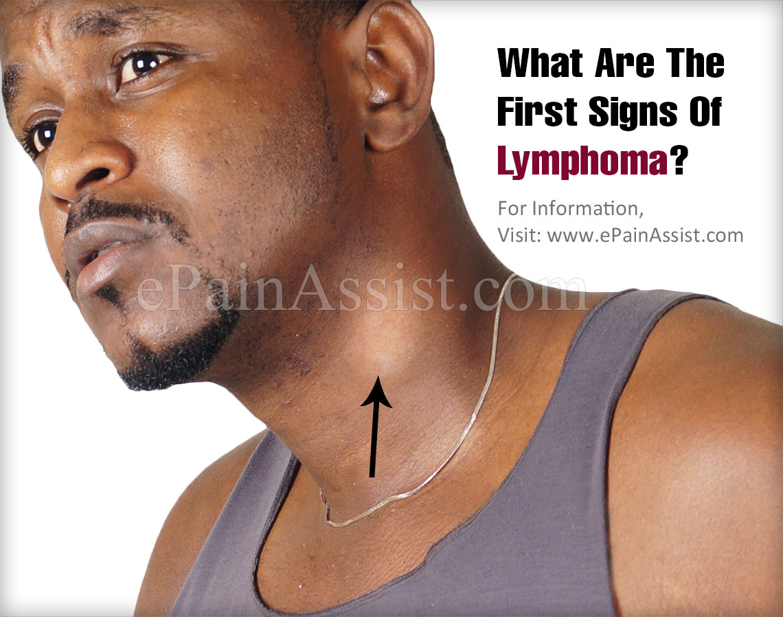 What Are The First Signs Of Lymphoma?