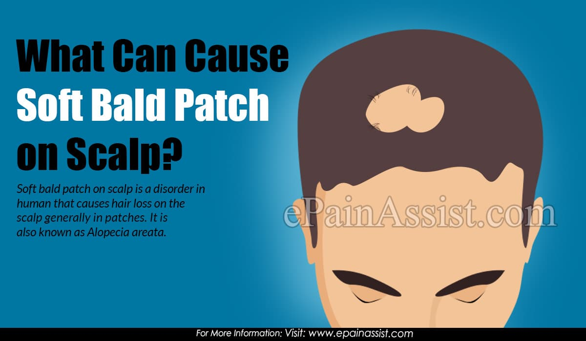 What Can Cause Soft Bald Patch on Scalp?