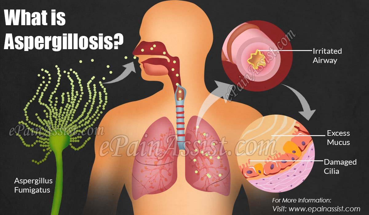 What is Aspergillosis?