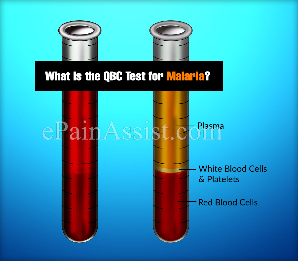 What is the QBC Test for Malaria?