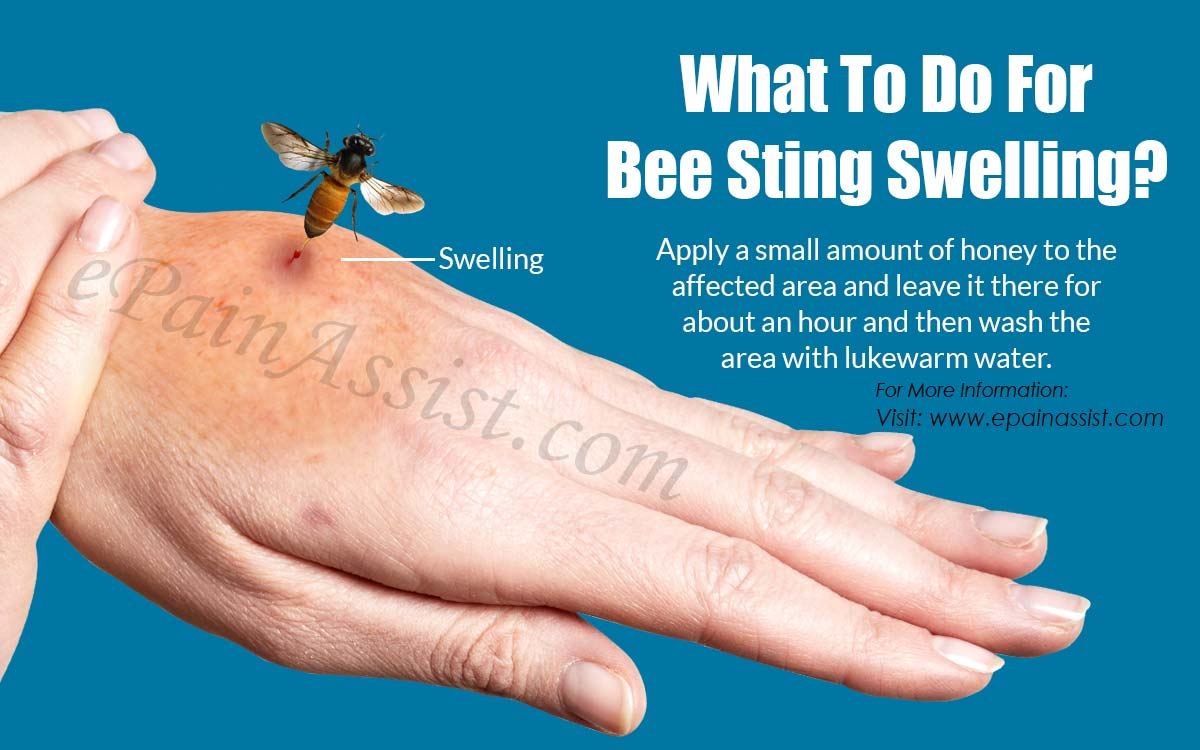 What To Do For Bee Sting Swelling?