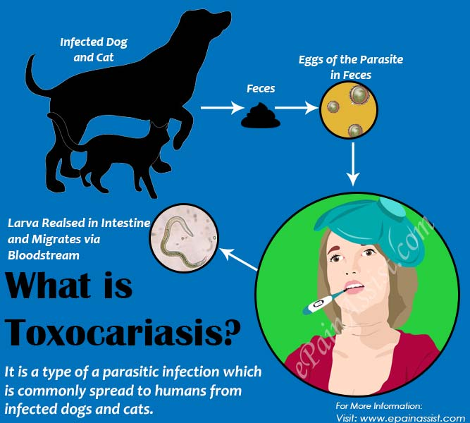 What is Toxocariasis?