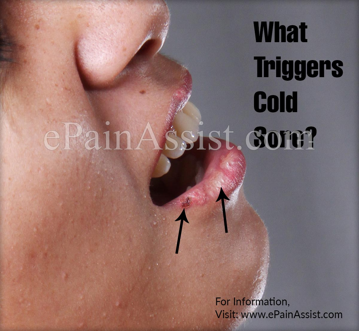 What Triggers Cold Sore?
