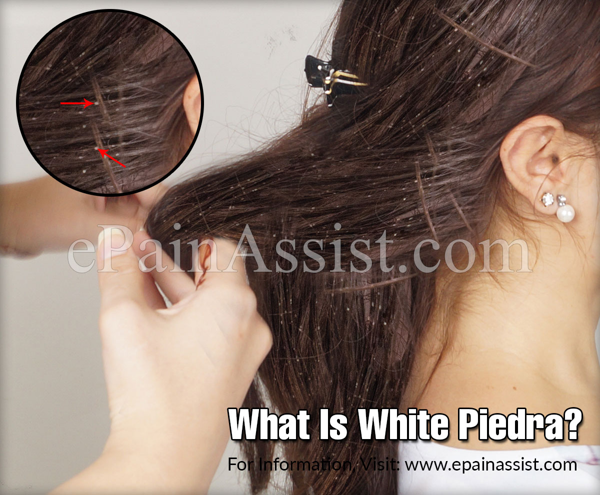 What Is White Piedra?