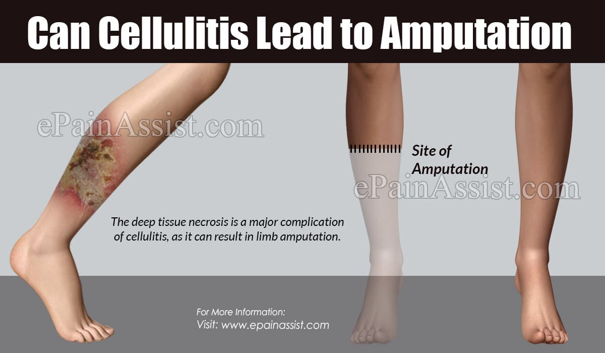 Can Cellulitis Lead to Amputation