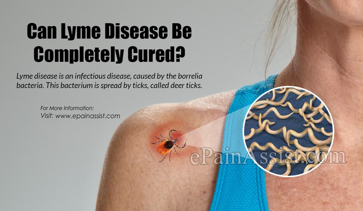 Can Lyme Disease Be Completely Cured?