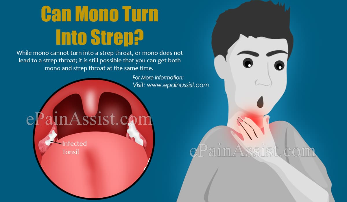 Can Mono Turn Into Strep?