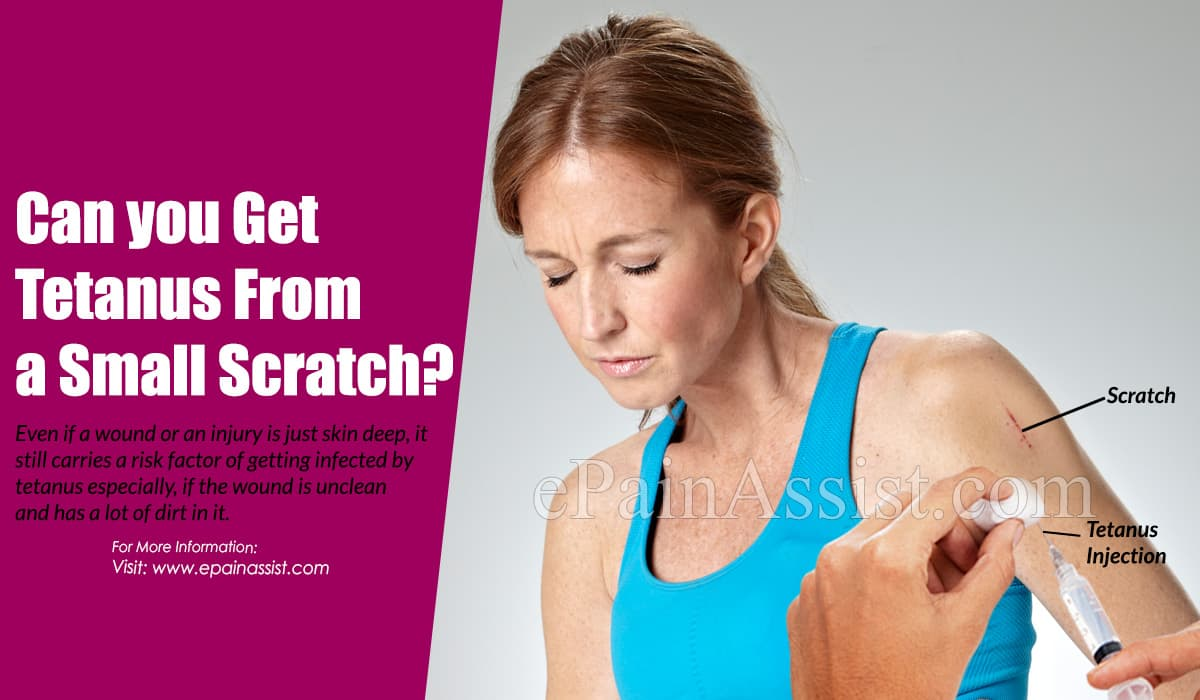 Can you Get Tetanus From a Small Scratch?