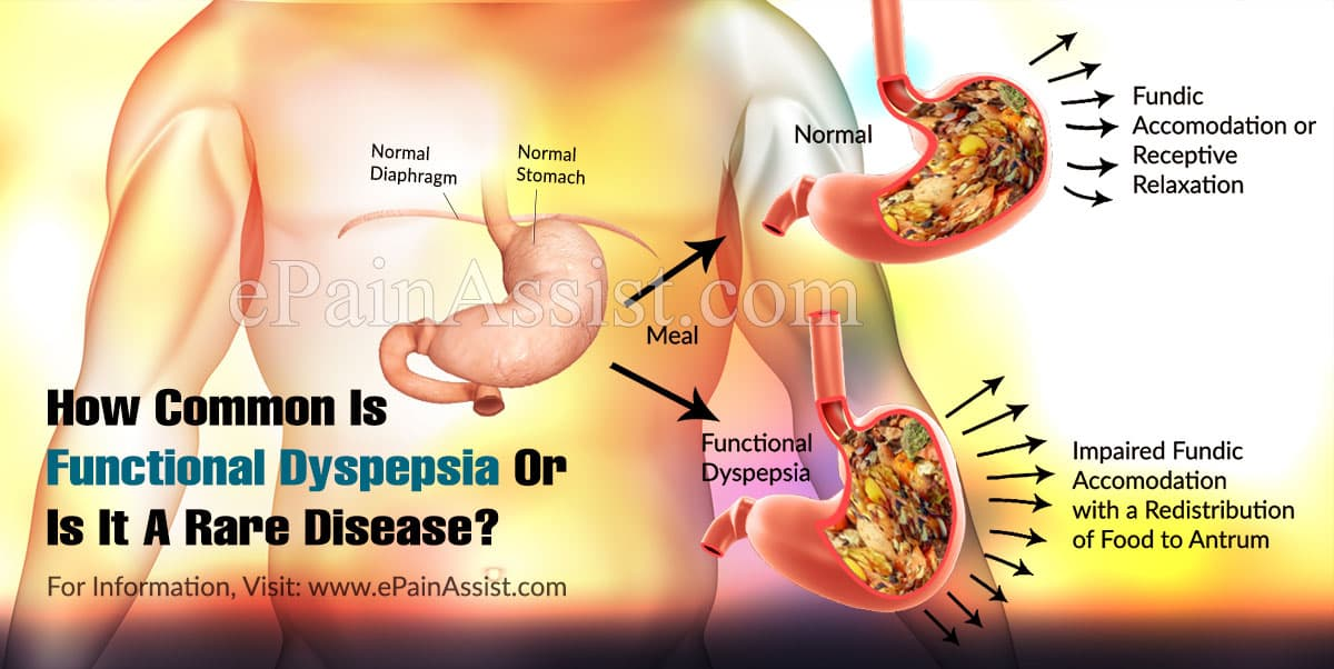 How Common Is Functional Dyspepsia Or Is It A Rare Disease?