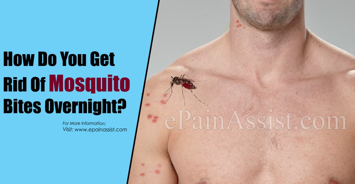 How Do You Get Rid Of Mosquito Bites Overnight?