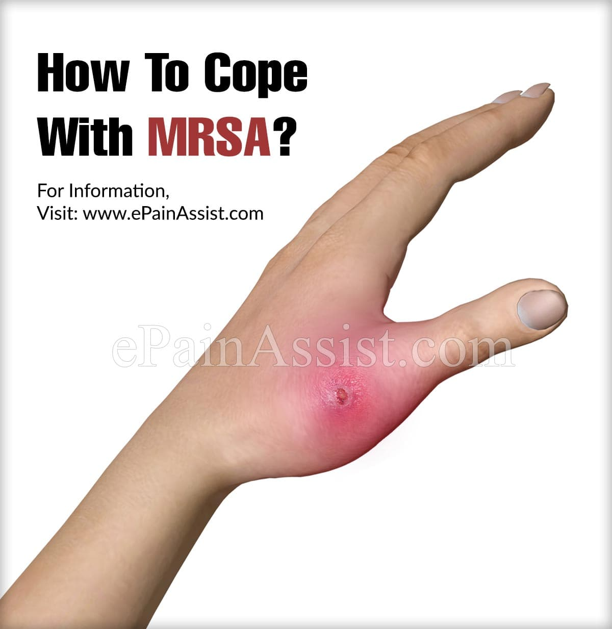 How To Cope With MRSA?