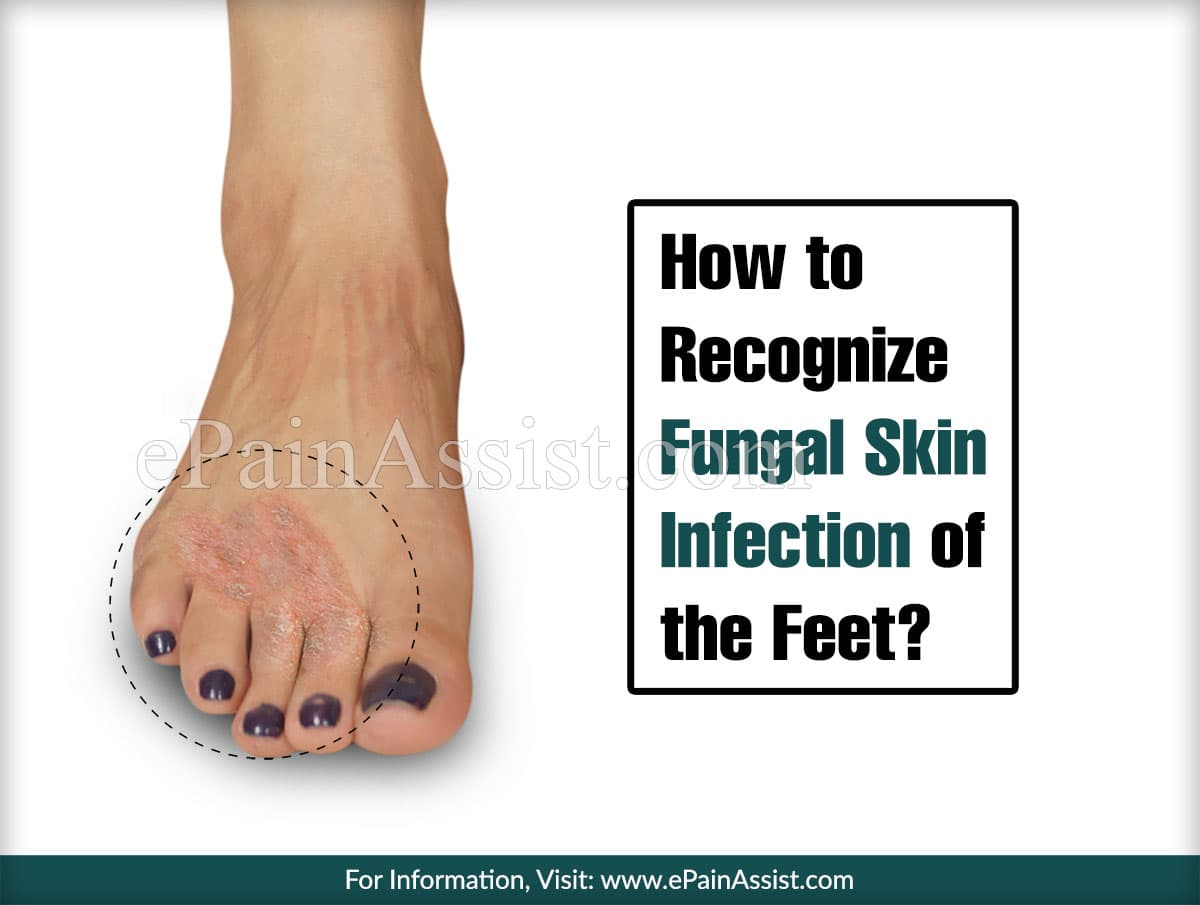 How to Recognize Fungal Skin Infection of the Feet?