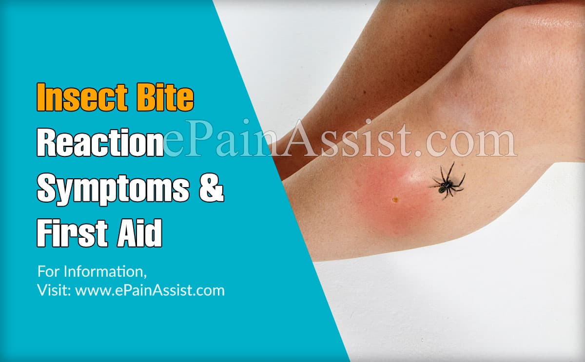 Insect Bite Reaction Symptoms and First Aid