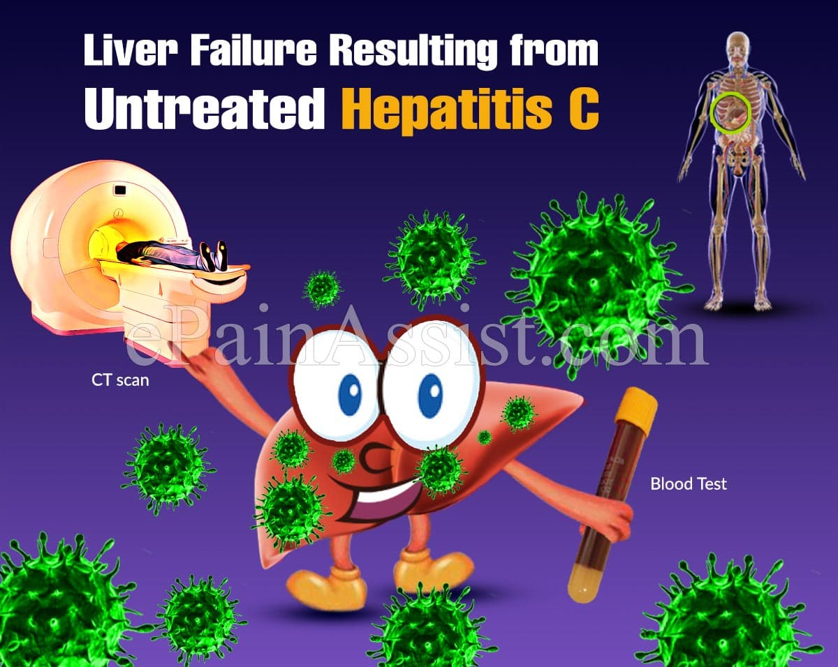 What are the Long-Term Effects of Untreated Hep C?