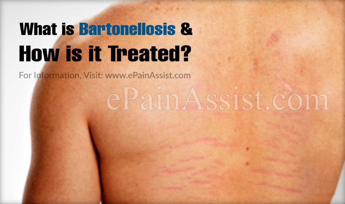 What is Bartonellosis & How is it Treated?