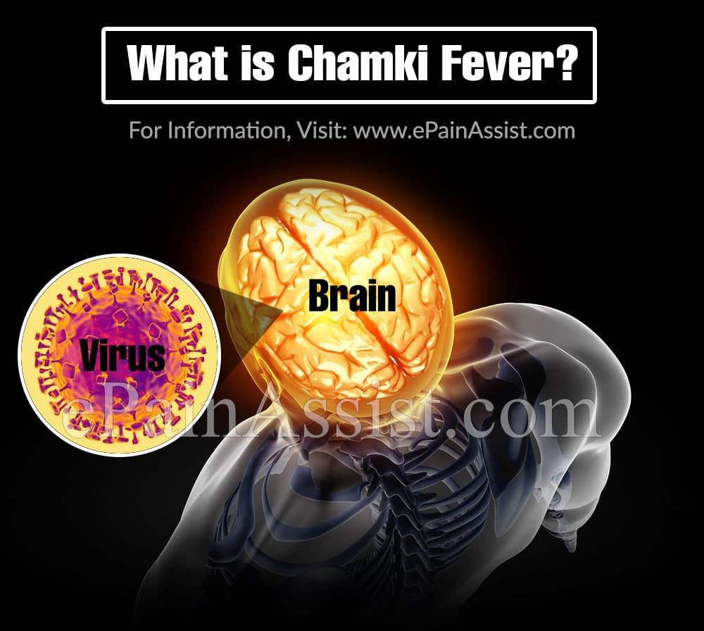 What is Chamki Fever?