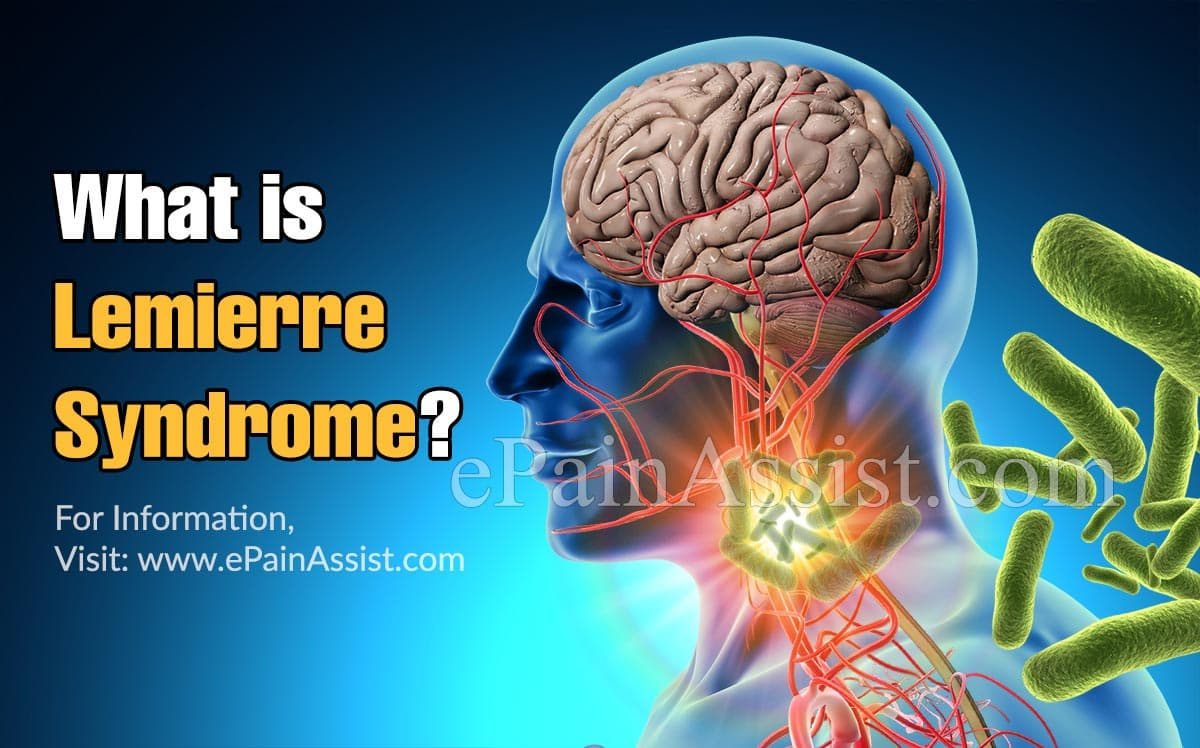 What is Lemierre Syndrome?