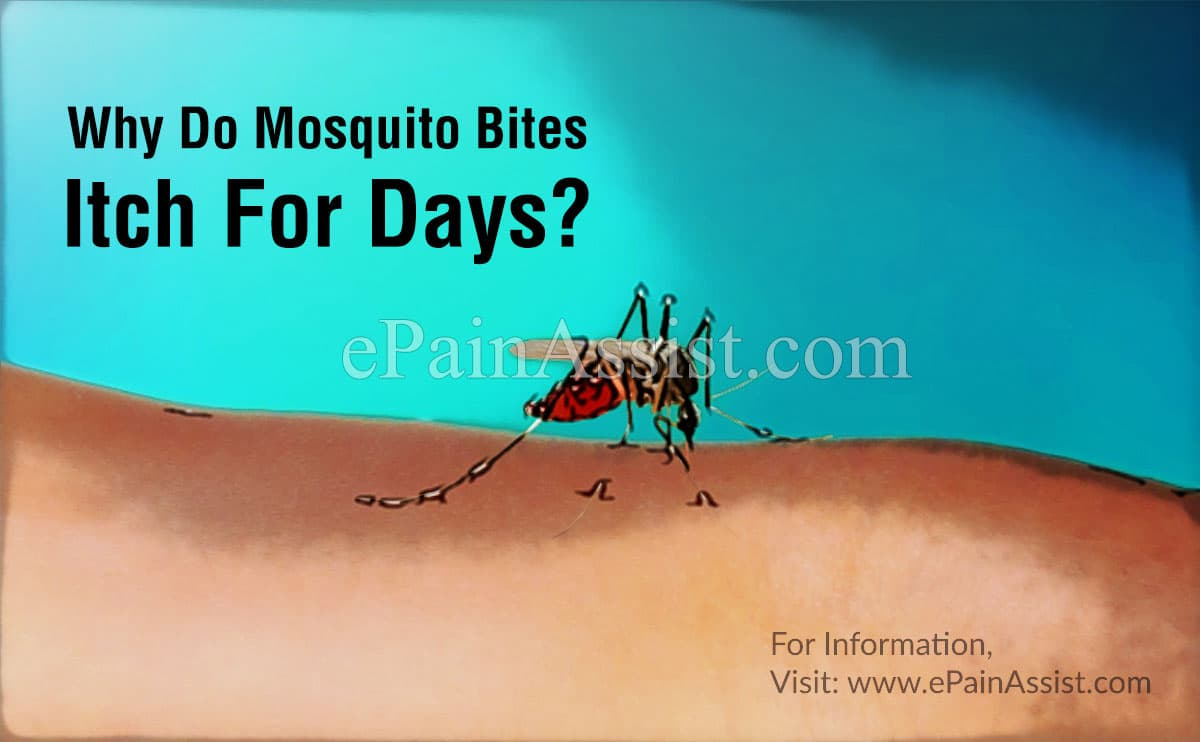 Why Do Mosquito Bites Itch For Days?