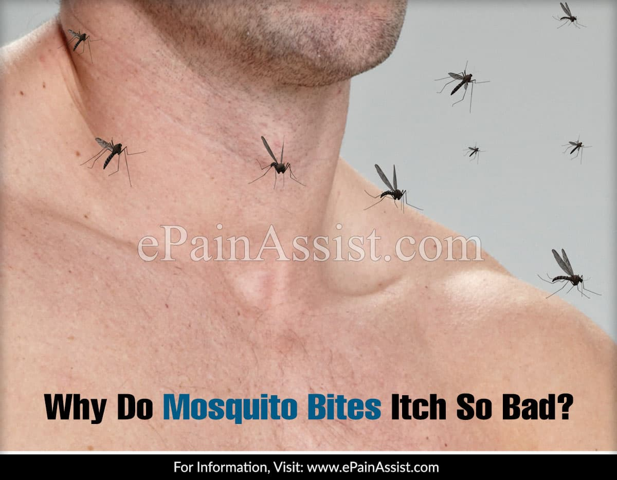Why Do Mosquito Bites Itch So Bad?