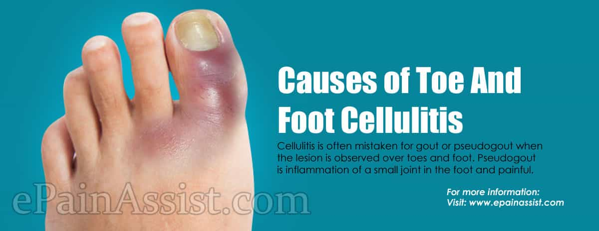 Causes of Toe And Foot Cellulitis