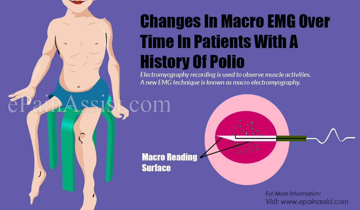 Changes in Macro EMG Over Time in Patients with a History of Polio