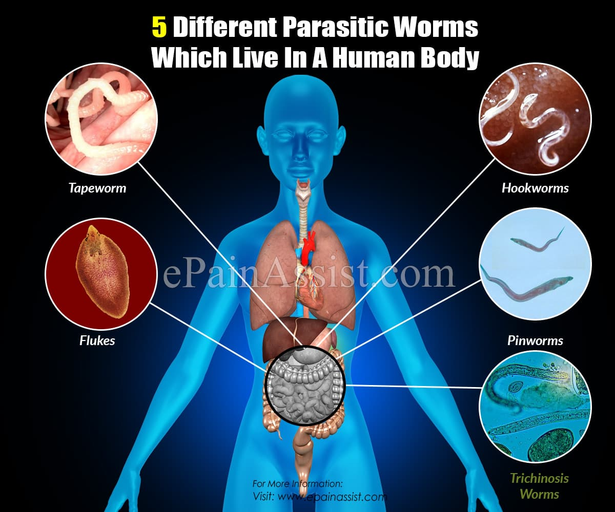 5 Different Parasitic Worms Which Live In A Human Body