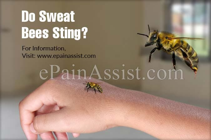 Do Sweat Bees Sting?