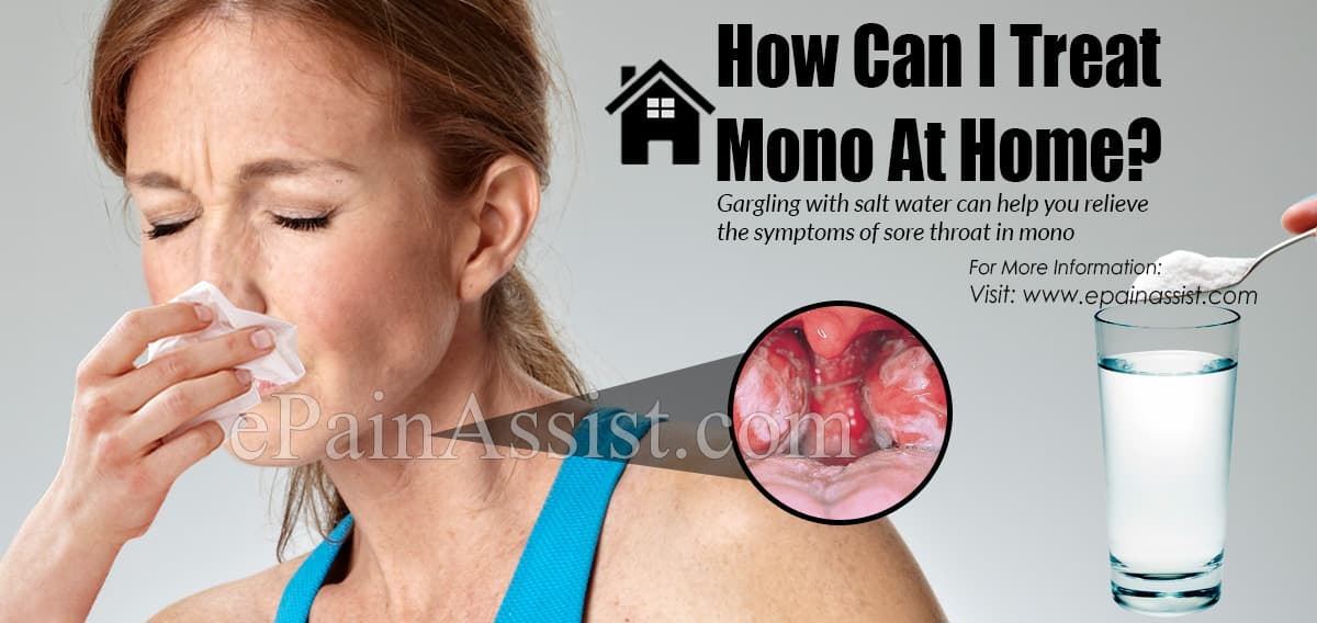 How Can I Treat Mono At Home?