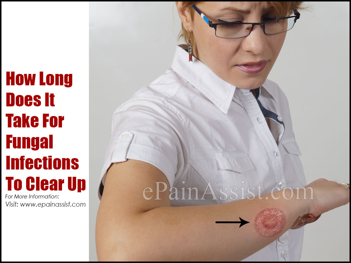 How Long Does It Take For Fungal Infections To Clear Up?