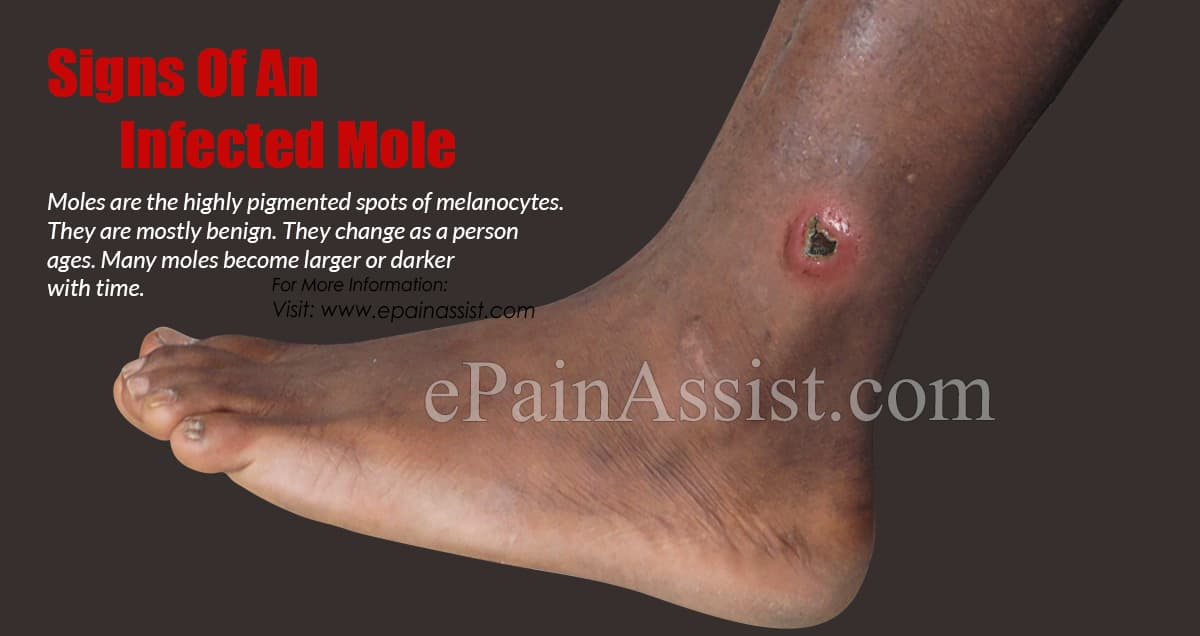 Signs Of An Infected Mole