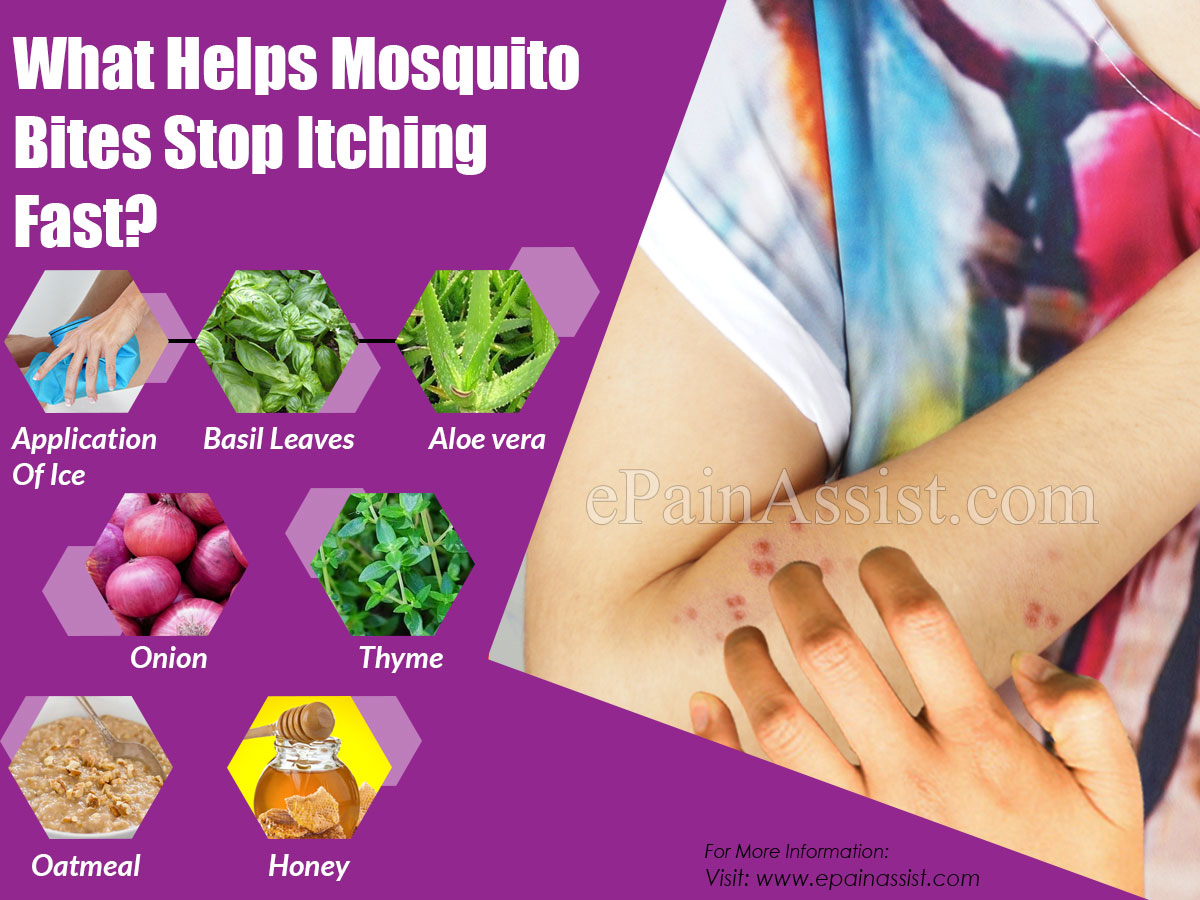 What Helps Mosquito Bites Stop Itching Fast?