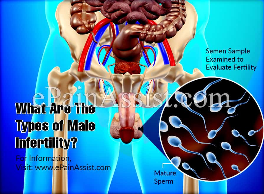 What Are The Types Of Male Infertility?