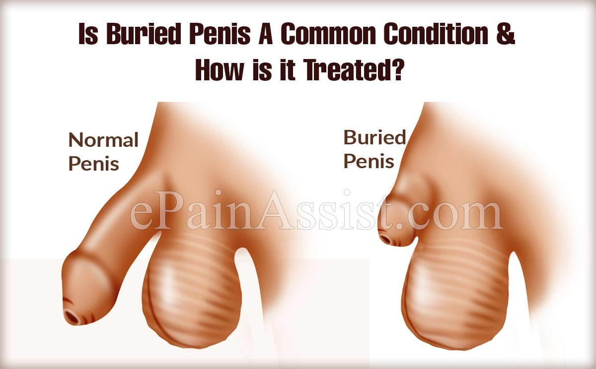 Is Buried Penis A Common Condition?