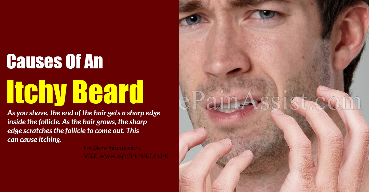 Causes Of An Itchy Beard