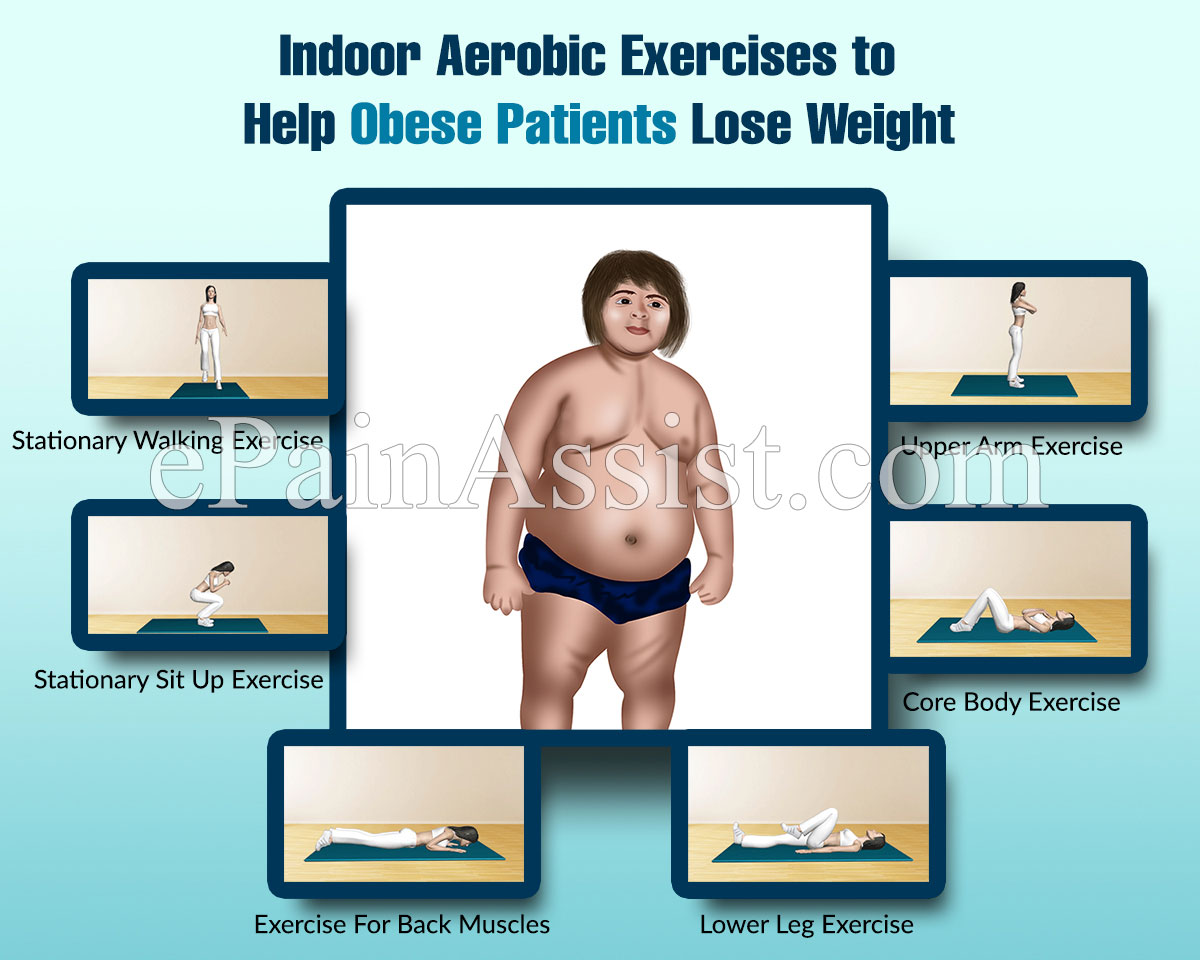 Obesity: Indoor Aerobic Exercises to Help Obese Patients Lose Weight, Exercise Guide