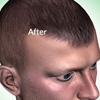 Hair Transplant Scars: Which Hair Transplant Procedure Leaves Less Scarring?