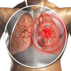 Idiopathic Pulmonary Fibrosis (IPF) vs. COPD