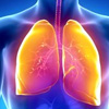 Is Interstitial Lung Disease Contagious?