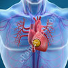 10 Leading Risk Factors For Developing Cardiovascular Disease