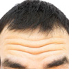 Top 10 Home Remedies To Get Rid Of Deep Forehead Wrinkles