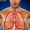 What Are The Complications Of Interstitial Lung Disease?