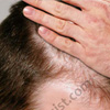 What Causes Hair Thinning & 8 Things You Can Do to Stop Thinning of Hair