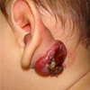 What is an Ulcerated Hemangioma?