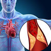What is the Difference Between Heart Attack and Heart Failure?